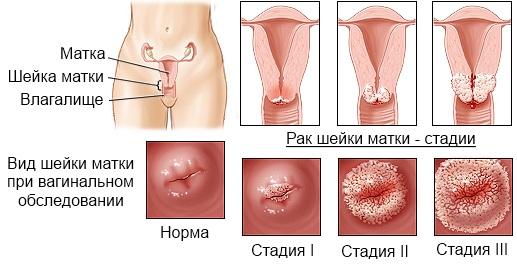 фото молодых девушек во время секса