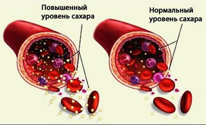 Почему поднимается уровень сахара в крови