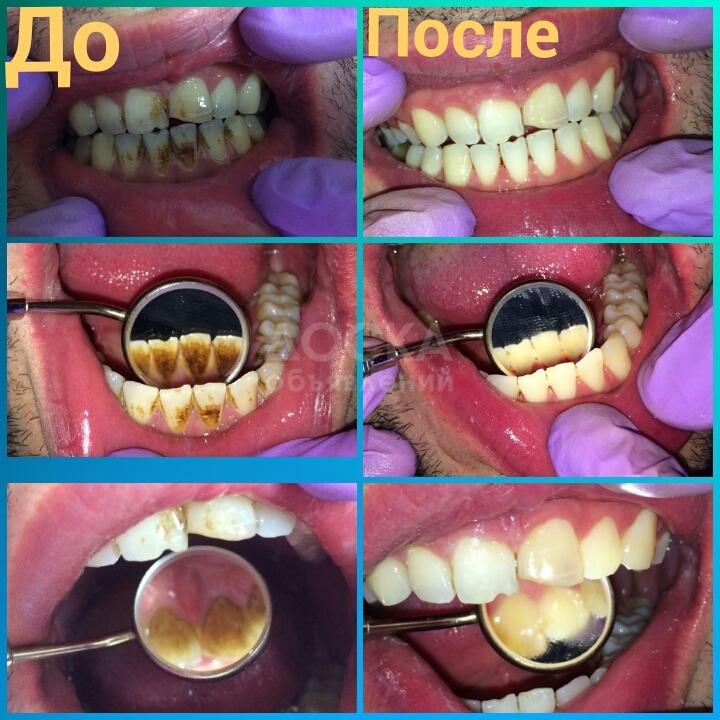 Как вылечить зуб в домашних условиях без дырки 836